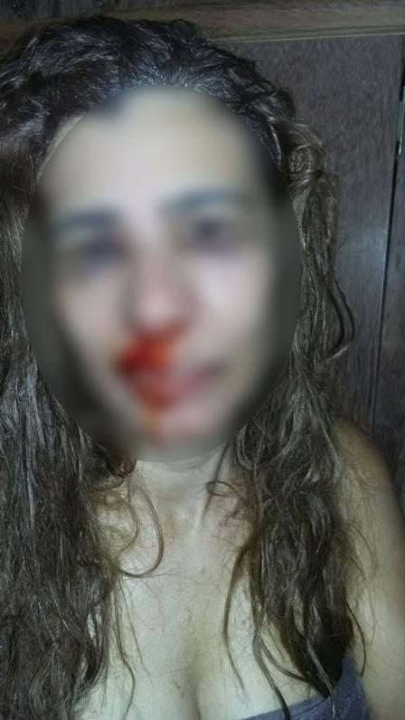 Durante a sessão de tortura, a jornalista relata que levou socos e tapas no rosto