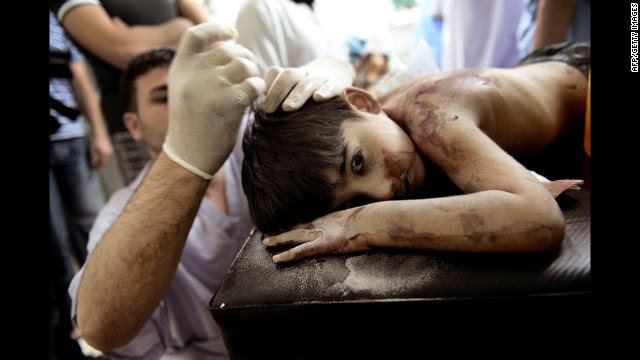 A Syrian boy receives treatment after he was wounded by shells from a government helicopter that hit his house.