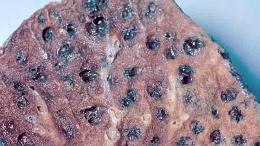 Black Lung Disease Asbestos