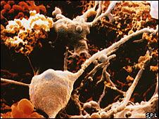 மூளையில் நரம்புக்கலங்கள் சார்ந்து ஏற்படும் குறைபாட்டுப் பகுதிகளுள் தேவையான அடிப்படை மூலவுயிர்க்கலங்களை (precursor stem cells) செலுத்தி செய்யப்பட்ட சிகிச்சைகளின் மூலம் உலகில் மூளை சம்பந்தப்பட்ட ஆபத்தான நோய்க்கு தீர்வு பெறப்பட்டுள்ளது. இச்சிகிச்சை எலிகளில் வெற்றியளித்துள்ளது. இவ்வகையில் மூளை சம்பந்தமான ஆபத்தான நோய்களுக்கு (multiple sclerosis போன்றவற்குக் கூட) தீர்வு காணலாம் என ஆய்வாளர்கள் நம்பிக்கை வெளியிட்டுள்ளனர்.