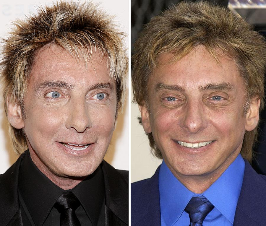 Barry Manilow before and after plastic surgery? (image hosted by dailymail.co.uk)
