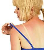 Τα εγκαύματα πρώτου βαθμού προκαλούνται συνήθως από την ηλιακή ακτινοβολία, το ζεστό νερό, τις φλόγες, και από άλλες πηγές θερμότητας.