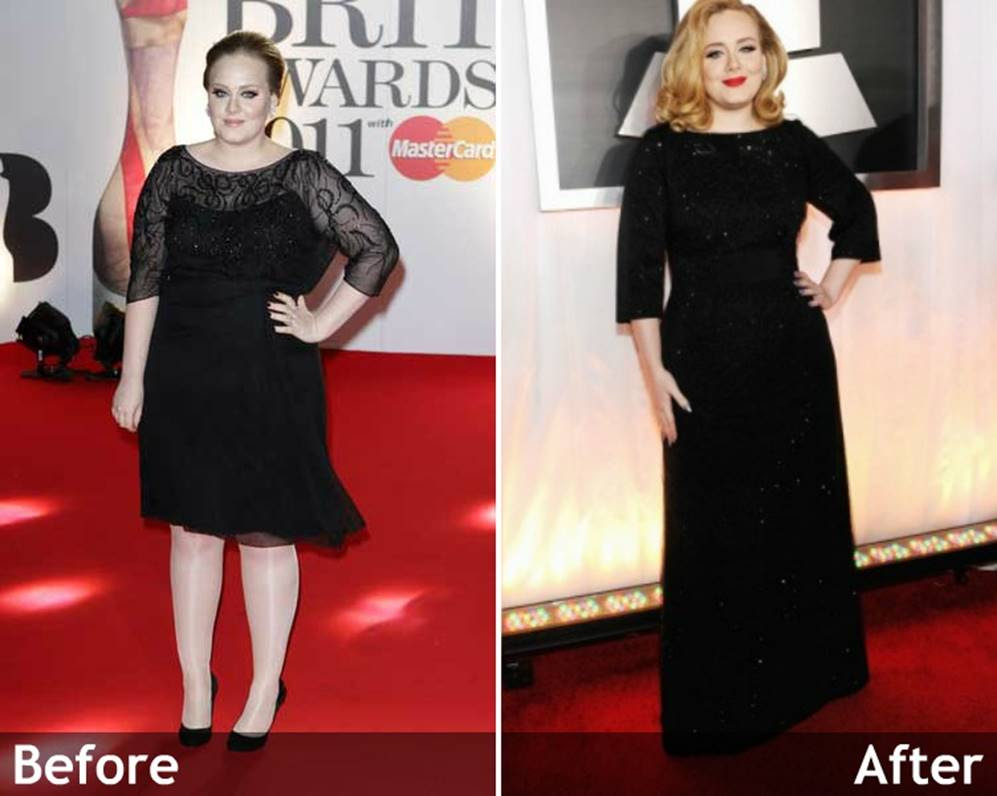 Adele's Before and After Surgery Photos Show Proof of the ...