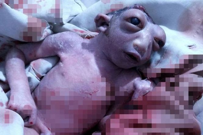 Bebê choca médicos após nascer com metade da cabeça e se manter vivo