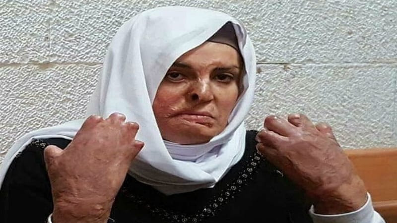 Israa Jaabis, sentenced to 11 years, suffers from burns all over her body and is not being treated adequately inside an Israeli prison [Wadi Hilweh Information Center]
