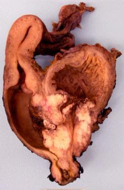 bladder cancer image