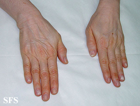 Carotenemia (Yellow Skin from High Carotene Levels ...
