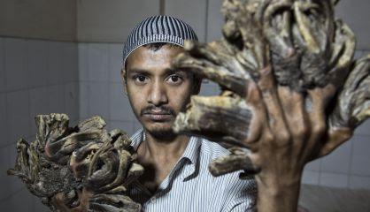 Abul Bajandar, antes de la operación.