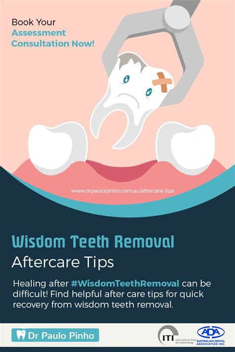 ideas  wisdom teeth removal  pinterest