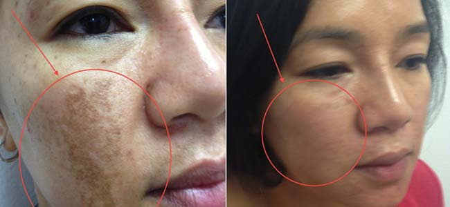 What is Melasma? - A Knowledge Archive