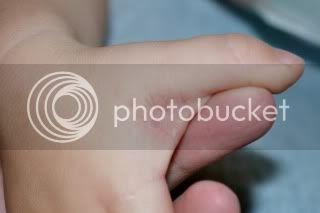 whats wrong w/ LOs hands? *pic* - BabyGaga