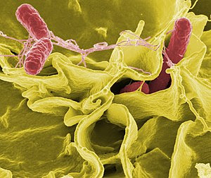 Salmonella bacteria is a common cause of foodb...