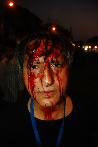 I Bleed and Feel the Pain of Karbala Ashura and Hussain by firoze shakir photographerno1