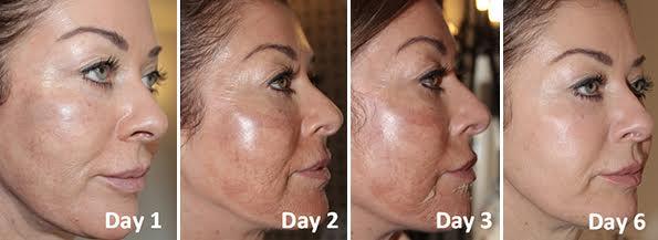 Medical Facial Peels Leeds Starting At 99