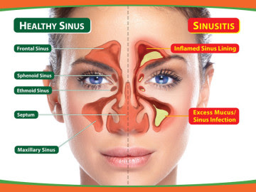 Image result for sinusitis