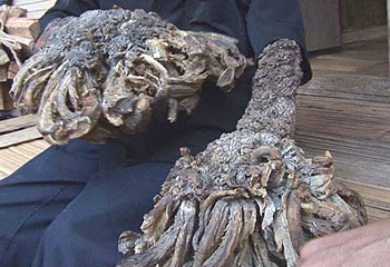 tree-man-warts Wowzza, Its Dede: The Tree Man picture