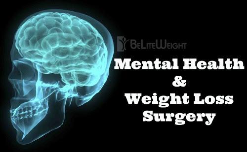 Mental Health & Weight Loss Surgery - BeLiteWeight ...