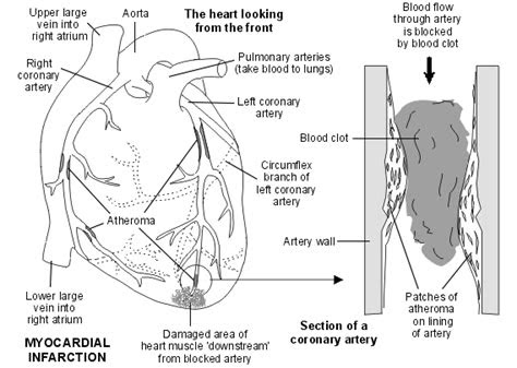 asuhan keperawatan klien  infark miokardium