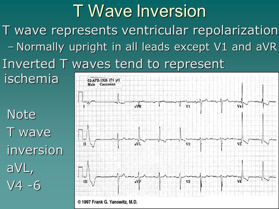 T+Wave+Inversion+T+wave+represents+ventricular+repolarization