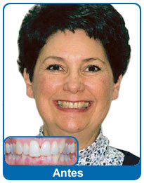 antes-e-depois-aparelho-dentario-7