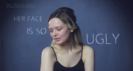 Foto: You Look Disgusting/Youtube/Reprodução