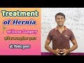 Naturopathy Treatment of Hernia