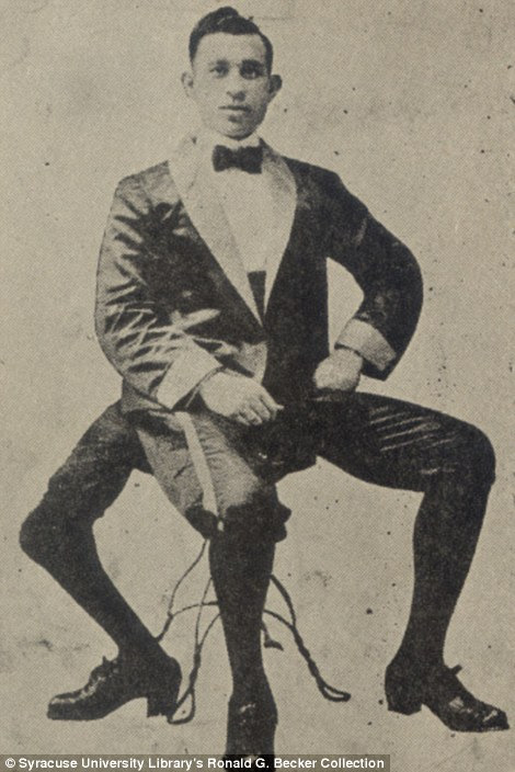 Stretch of imagination: Felix Wehrle, Elastic Man, could stretch his skin because he had Ehlers-Danlos Syndrome while Frank Lentini who was born with three legs in Sicily moved the U.S. and became famous before marrying and having four children