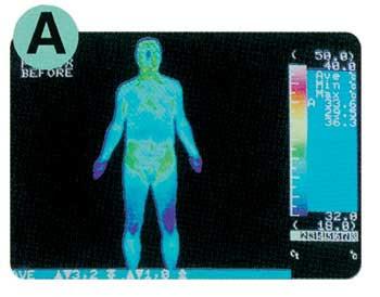 Suhu badan normal