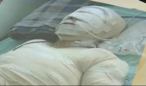 maria de fétima cecílio, que teve 40% do corpo queimado com ácido e óleo pelo ex-companheiro (Foto: Reprodução/RBS TV)