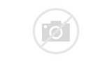 Injury To Back Of Knee Photos