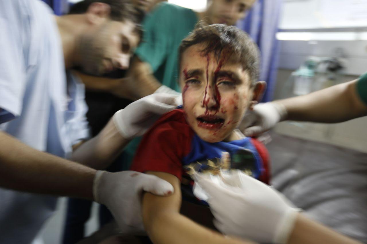 LA TRAGEDIA DE LOS NIÑOS DE GAZA. El miedo, el hambre, la sed, el dolor, el desarraigo, la pérdida, la muerte. La cara de los chicos de Gaza, las víctimas indefensas de la escalada militar de Israel. (AP, AFP, REUTER)