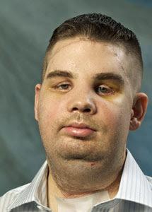 James Maki. Pinche para ver su cara antes del trasplante. | BWH