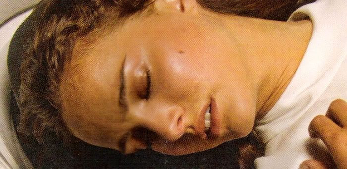 Padme dies after giving birth to Luke and Leia on the asteroid Polis Massa.