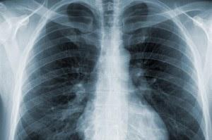 Mesothelioma On X Ray