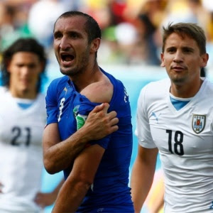 Giorgio Chiellini, da Itália, mostra marca de mordida de Luis Suárez, do Uruguai, em partida na Copa do Mundo