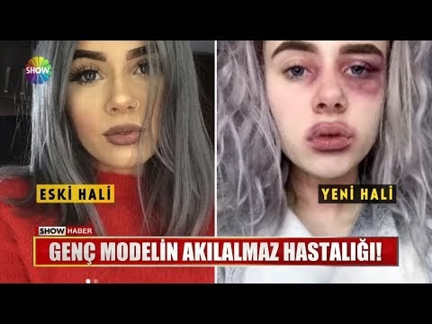Genç modelin akılalmaz hastalığı!