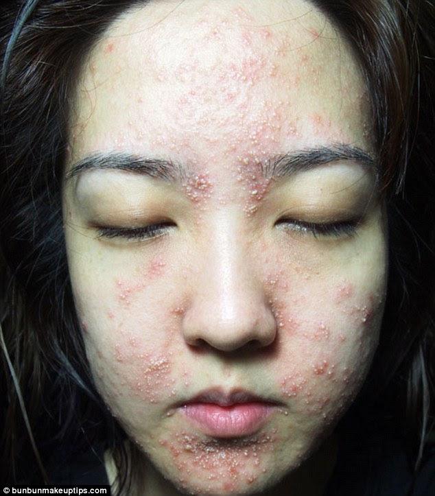 Juli five days after the facial