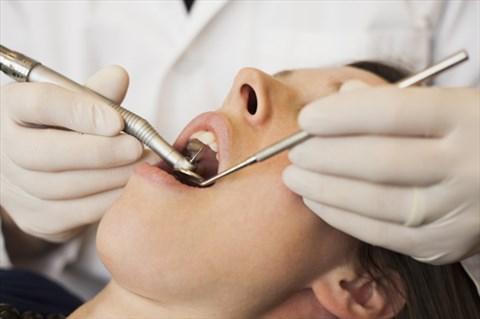 Tác dụng của việc lấy cao răng định kỳ - Nha Khoa Bally 1
