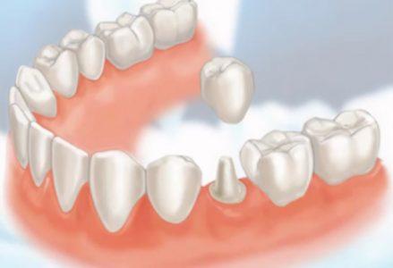 Có cần phải lấy tủy khi bọc răng sứ không? - Nha khoa Bally
