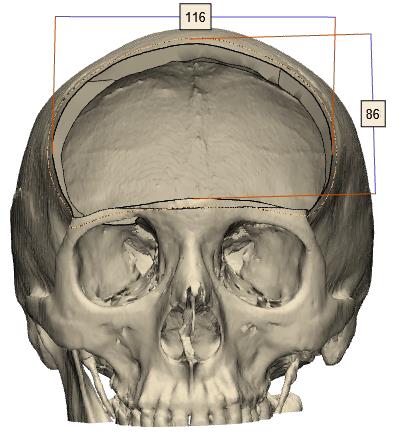 Imagen que contiene mamífero, primate, animal, vistiendo  Descripción generada automáticamente