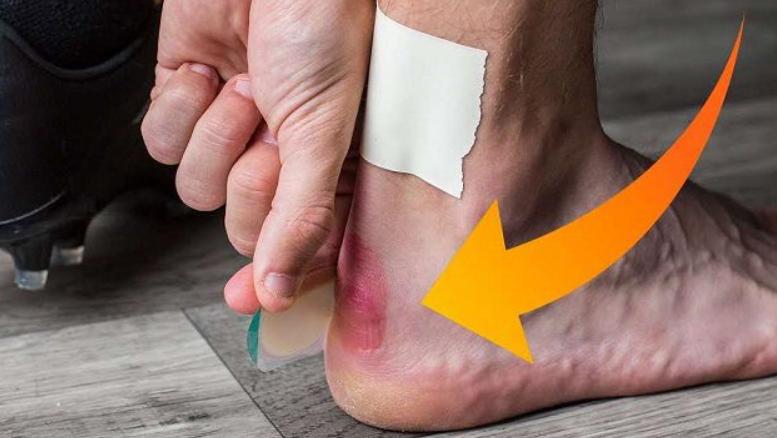 đi giày bị đau chân