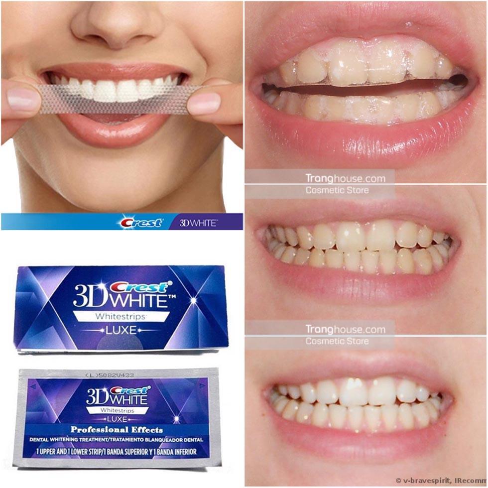 Miếng dán làm trắng răng ích lợi đi liền tác hại 1