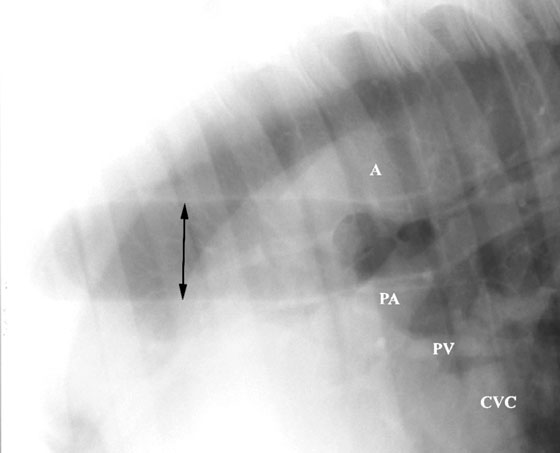 A right lateral radiograph of the dorsal cranial thorax of a normal 750 kg horse (Cassette position B, Fig. 8). The thoracic trachea (arrows) is located in the middle of the projection and the tracheal bifurcation is located between the aorta (A) and the pulmonary arteries (PA). Pulmonary veins (PV) are superimposed on the CVC in the lower right corner of the figure.
