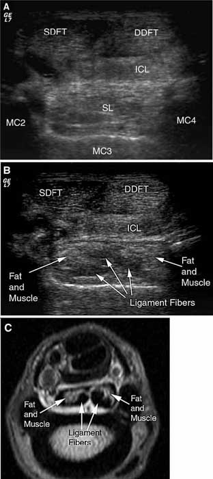 US images obtained with the forelimb in a non—weightbearing position, and the superficial digital flexor tendon is displaced medially. (A) The beam angle is perpendicular to suspensory ligament fibers, and the image is relatively echogenic despite the fact that the limb is in a non—weight-bearing position. The entire ligament can be identified, and the individual lobes can be differentiated. (B) The suspensory ligament fibers are hypoechoic compared with the muscle fibers and adipose tissue when the beam is not perpendicular to the ligament margins. (C) An MRI at same level in a different horse for comparison. This US technique allows visualization of the suspensory ligament anatomy, because the adipose tissue and muscle can be distinguished from the ligament fibers. However, further investigation is necessary to determine the accuracy of this technique for detection of pathologic change.