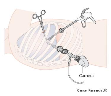 Bác sĩ có thể đặt một thiết bị nội soi lồng ngực vào giữa các lớp màn phổi (Ảnh: Cancer Research UK)
