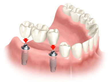 bridge implants.jpg