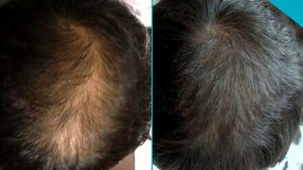 Hair Mesotherapy before after