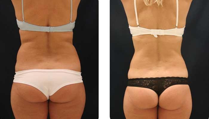 Как быстро избавиться от жировых отложений?, изображение №1