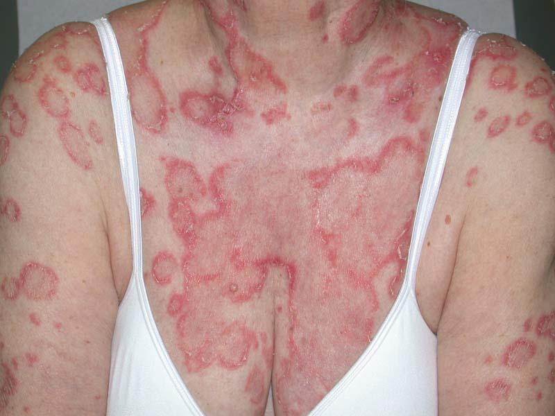 lupus lesiones anulares