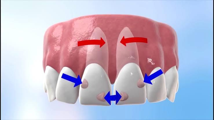 Image result for images for how invisalign works""